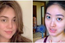 7 Beda potret Celine Evangelista dan Natasha Wilona saat tanpa makeup