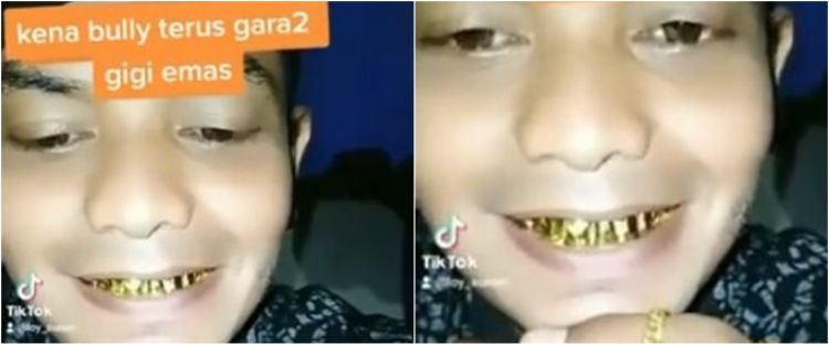 Viral cowok pamer perhiasan hingga gigi emas, gusi sampai bengkak