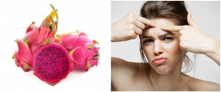 10 Manfaat buah naga untuk kecantikan, bantu kurangi jerawat