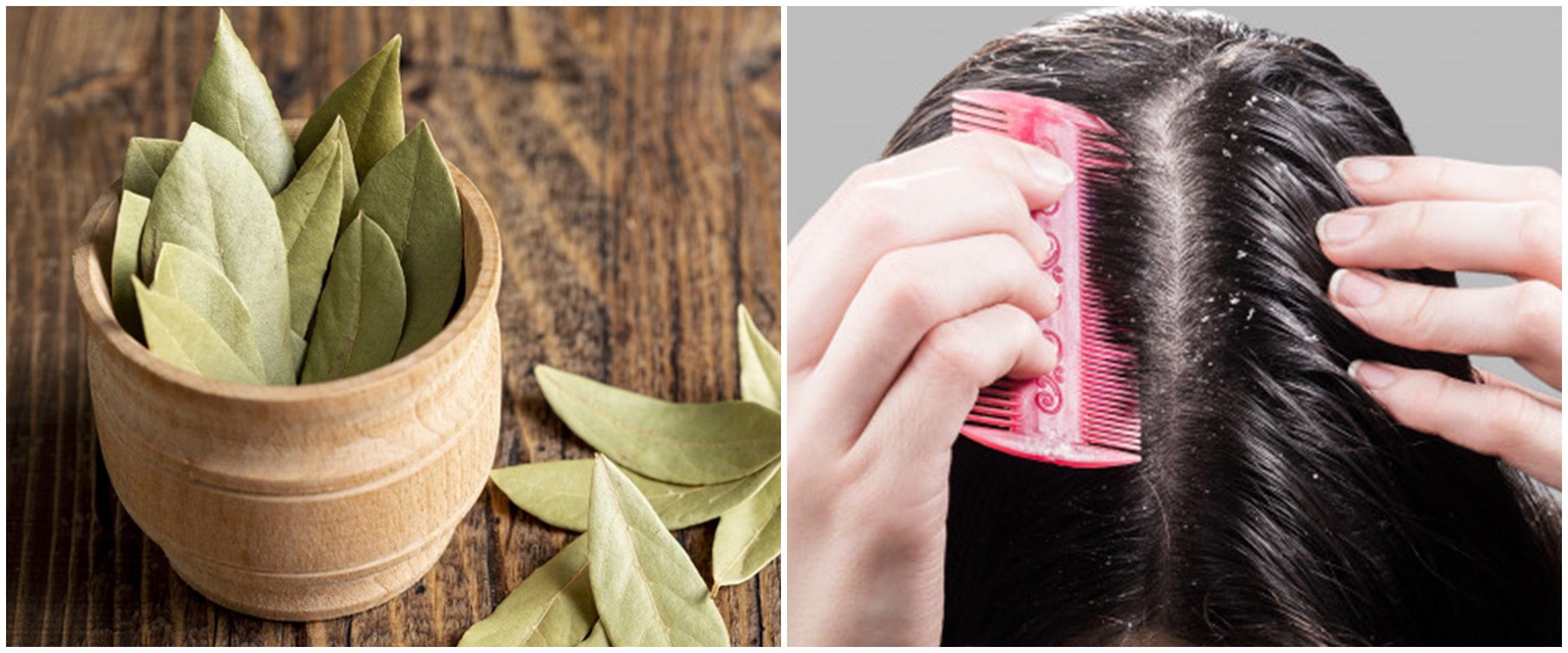 6 Manfaat daun salam untuk kecantikan, atasi ketombe