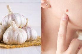 19 Manfaat bawang putih untuk kesehatan dan kecantikan