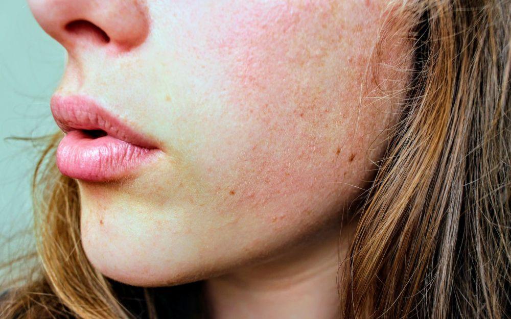 Manfaat lidah buaya untuk kecantikan dan cara menggunakannya © pexels.com