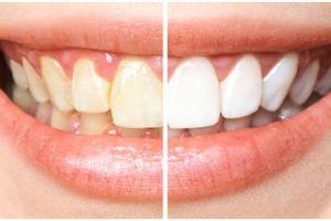 6 Buah ini ampuh memutihkan gigi secara alami, wajib dikonsumsi