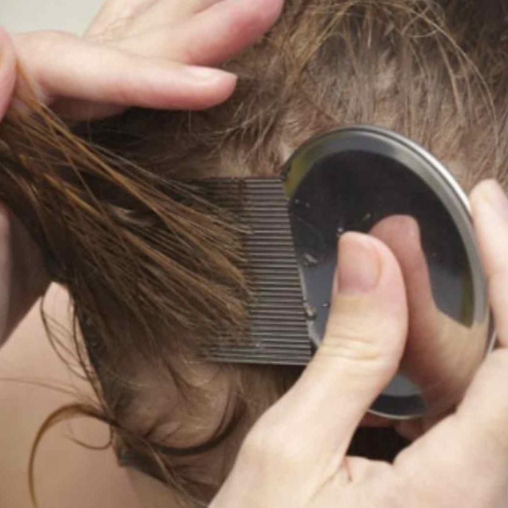 10 Cara menghilangkan kutu rambut, cepat dan aman dilakukan