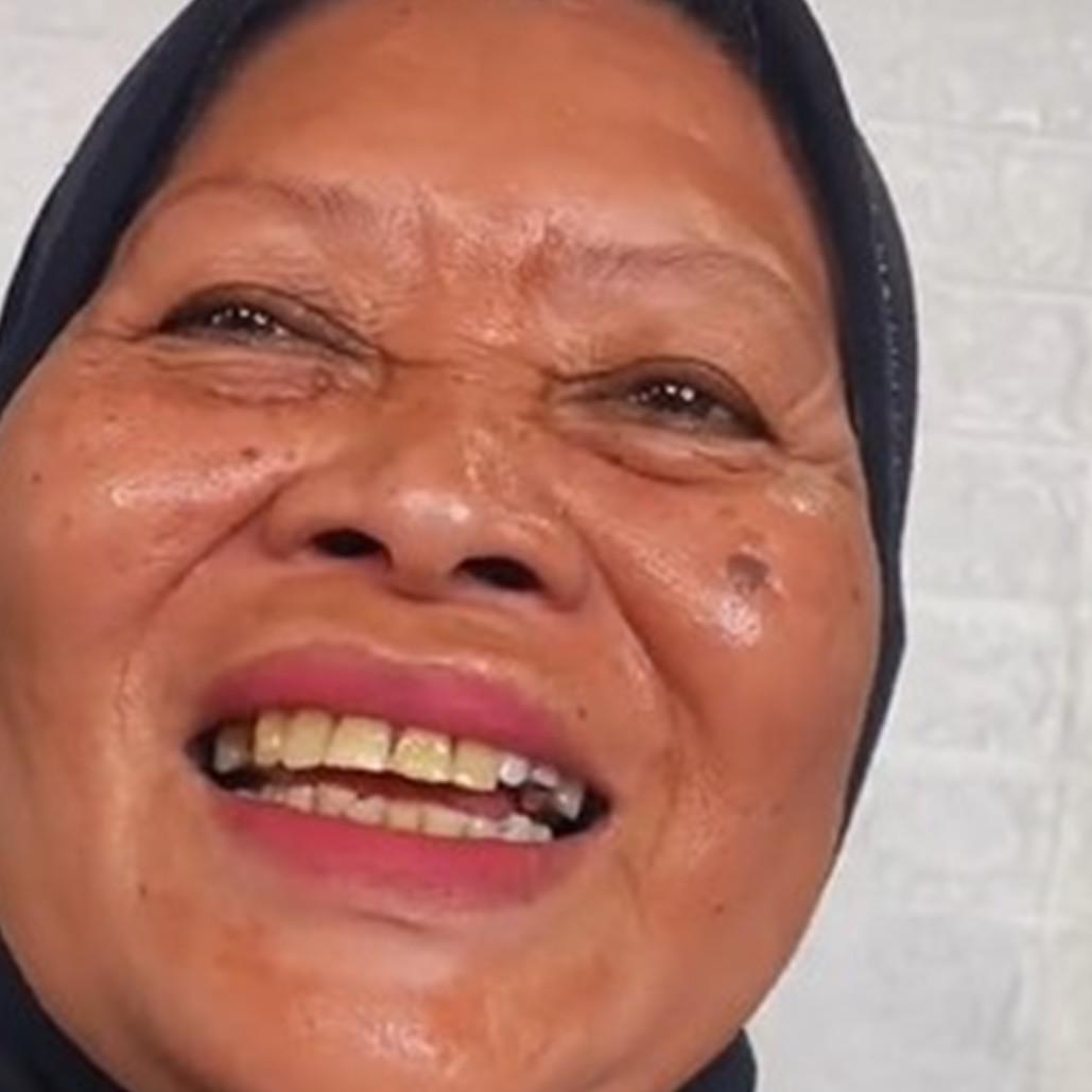 Nenek ini dirias pakai stiker, kulit kencang dan bebas kerutan