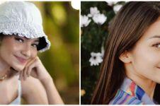 Kisah masa kecil Enzy Storia, ditinggal ayah hingga sakit autoimun