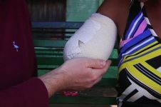 Nahas, lengan mempelai diamputasi jelang nikah karena diserang buaya