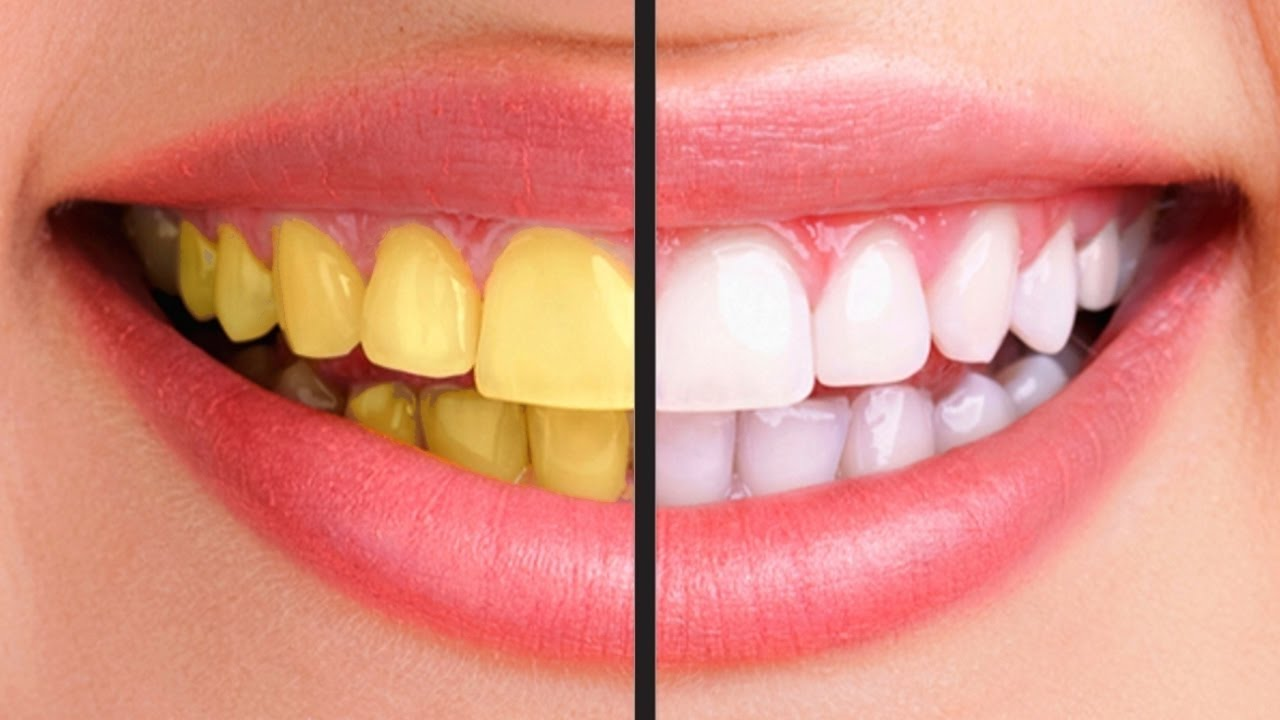 Tips bikin gigi putih bersih dengan buah-buahan, jadi senyum terus nih