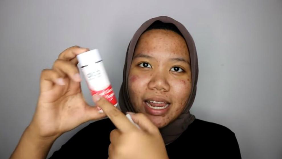 Skincare routine wajib dicoba untuk kamu yang berjerawat!