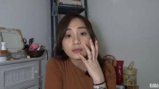 Intip perjuangan YouTuber cantik Rara Rahma melawan jerawat!