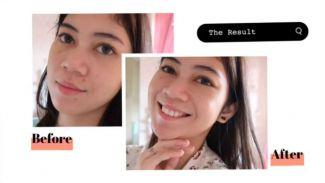 skincare untuk kulit berjerawat yang affordable versi Fiani Adila