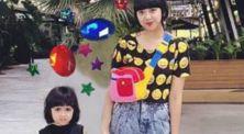 Mengenal 'Vetiligo' kelainan kulit yang diderita anak Diana Rikasari