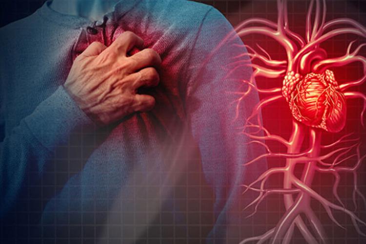 Kenapa rutin olahraga tetap bisa kena serangan jantung? Ini penjelasan